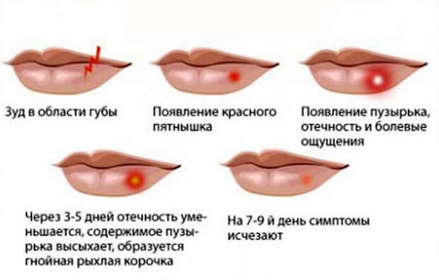 Герпес на губах у детей как лечить