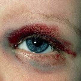 синяк на глазу