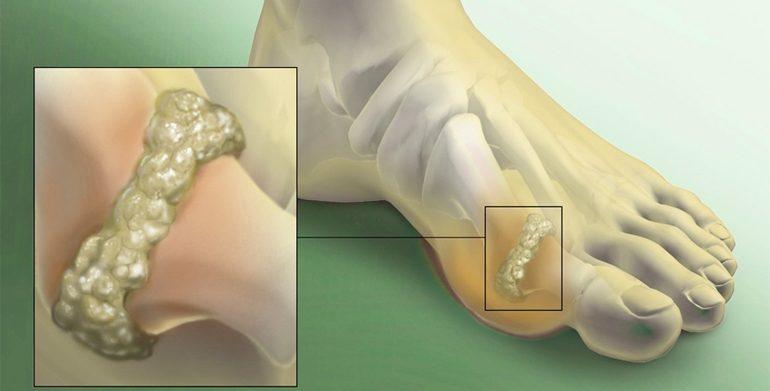 Подагра на ногах лечение в домашних условиях
