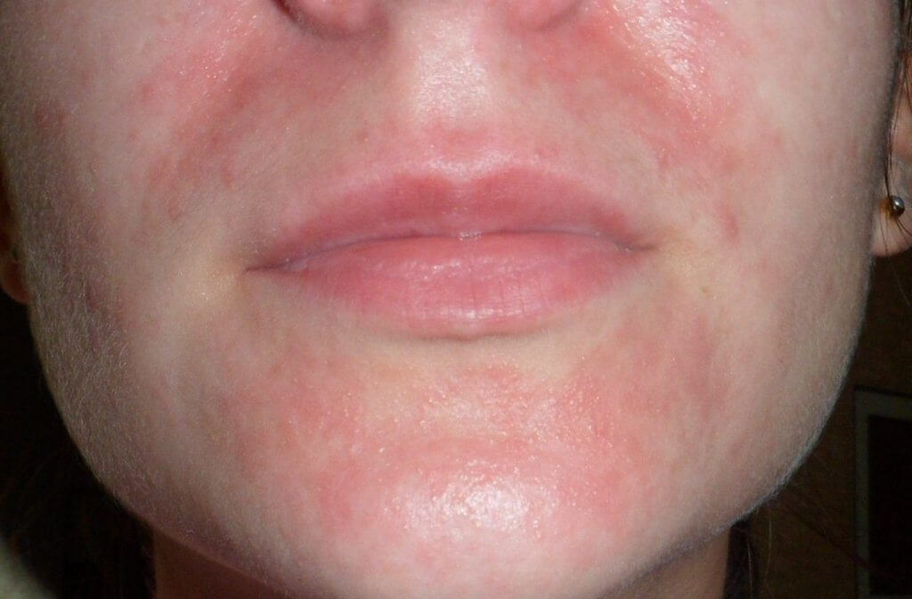 антигистаминные от аллергии