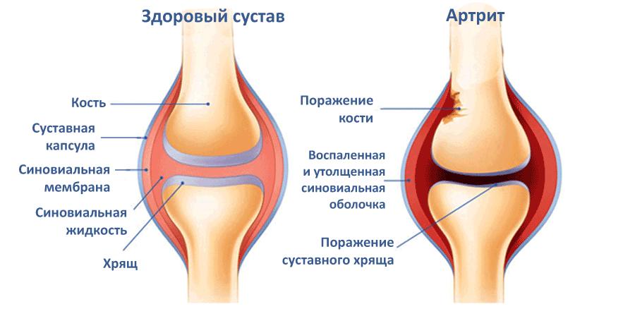 Что делать при артрите и артрозе суставов
