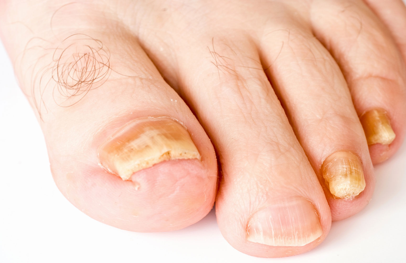 Как изнутри лечить грибок ногтей