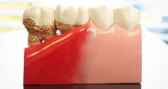 зубы с парадонтитом