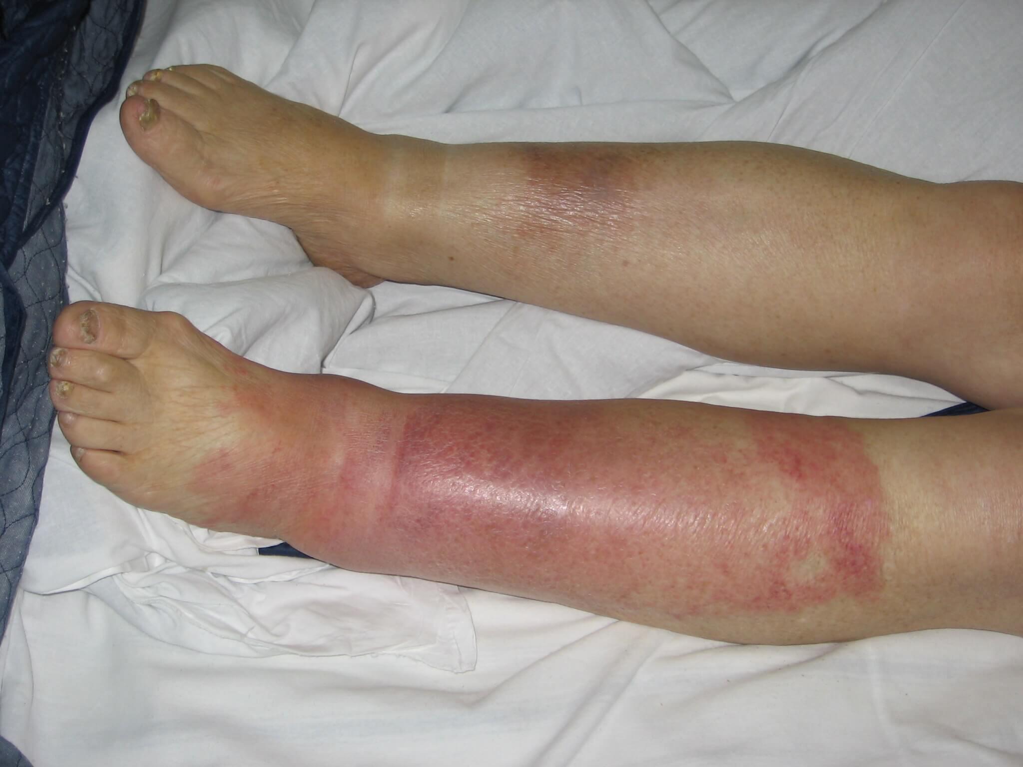 красные опухшие ноги