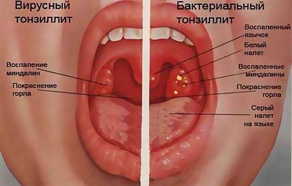 схема ангины