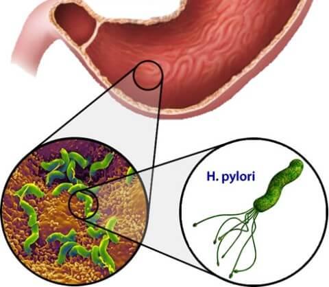 желудок и бактерии