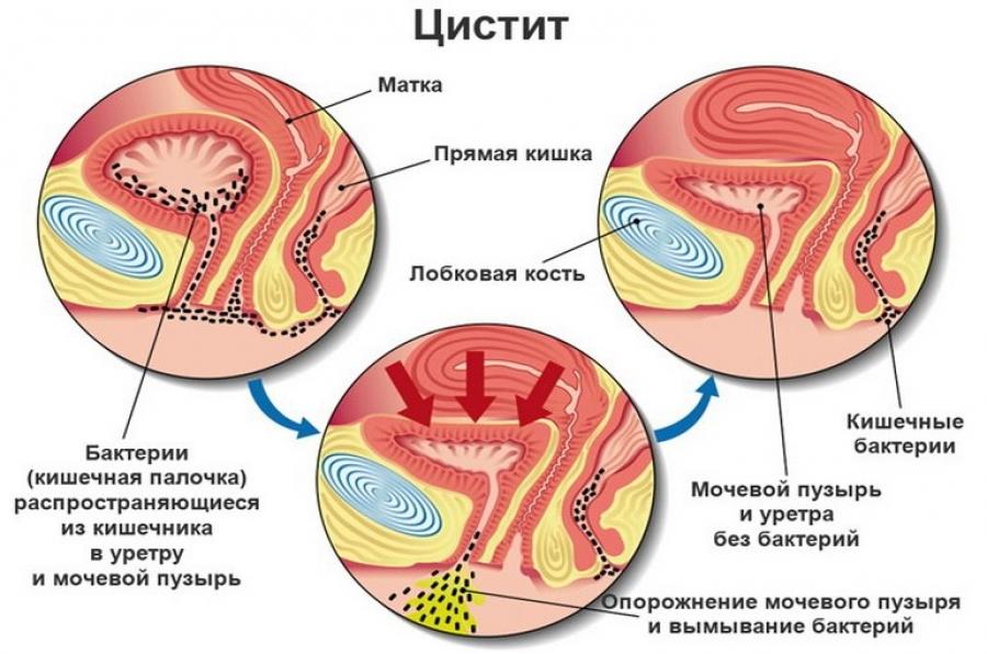 Народные средства от цистита - болезни мочеполовых путей