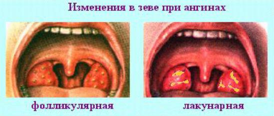 внешний вид ангины