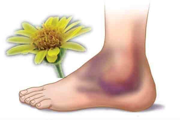синяк на ноге