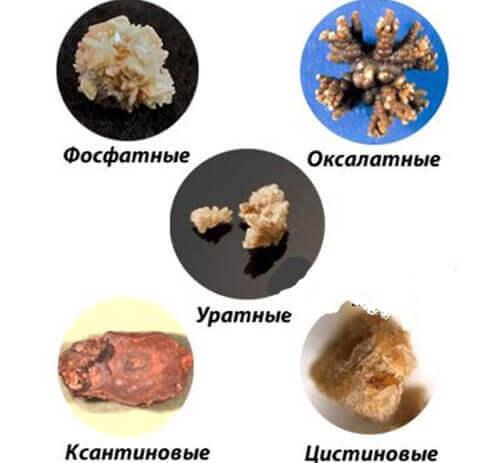виды камней которые могут быть в почках