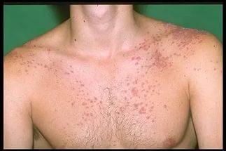 Псориаз на груди
