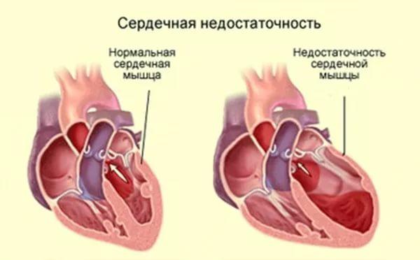 сердце схема