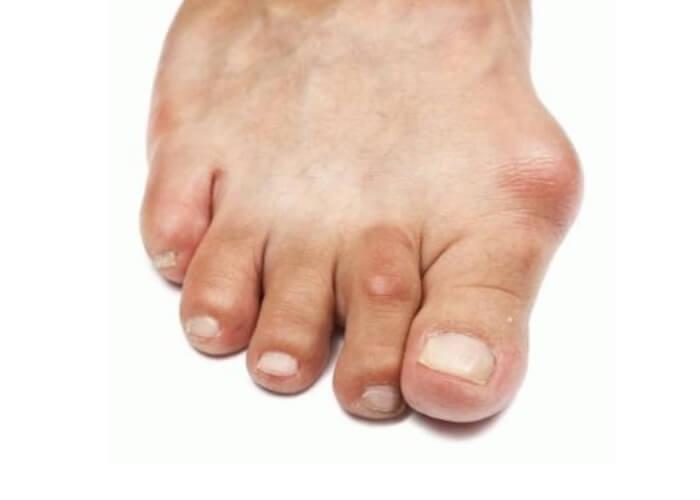 Как лечить подагру на ногах медикаментозно