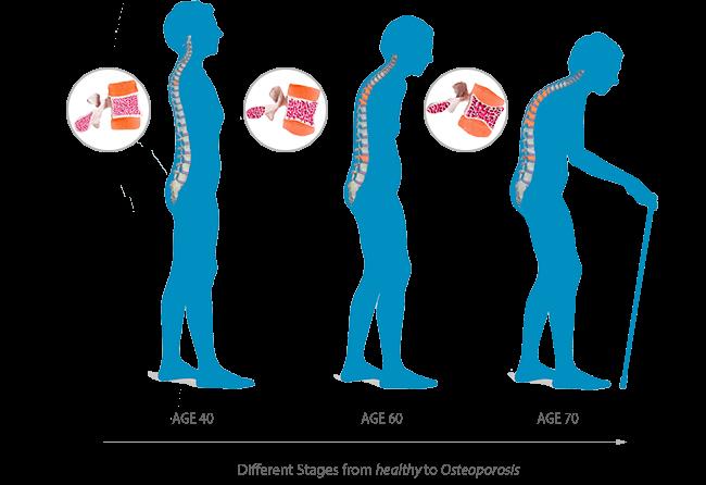 остеопороз в зависимости от возраста