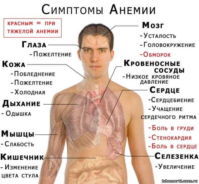 схема симптомом анемии