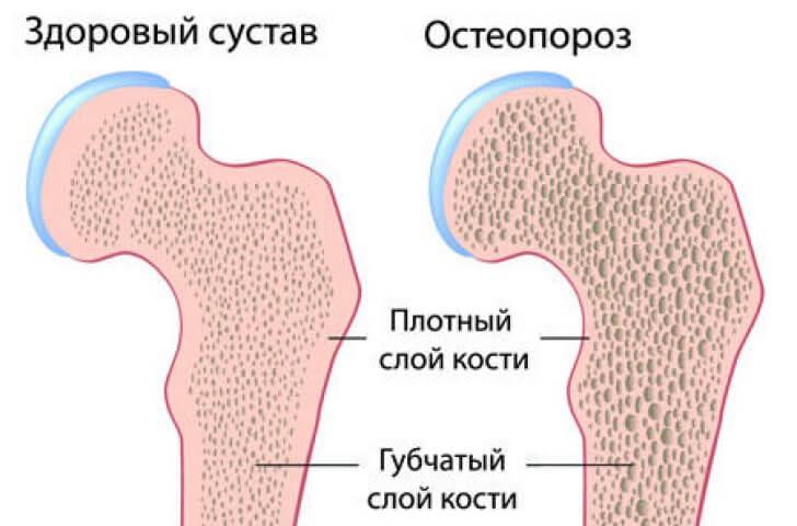 здоровые кости и кости при остеопорозе