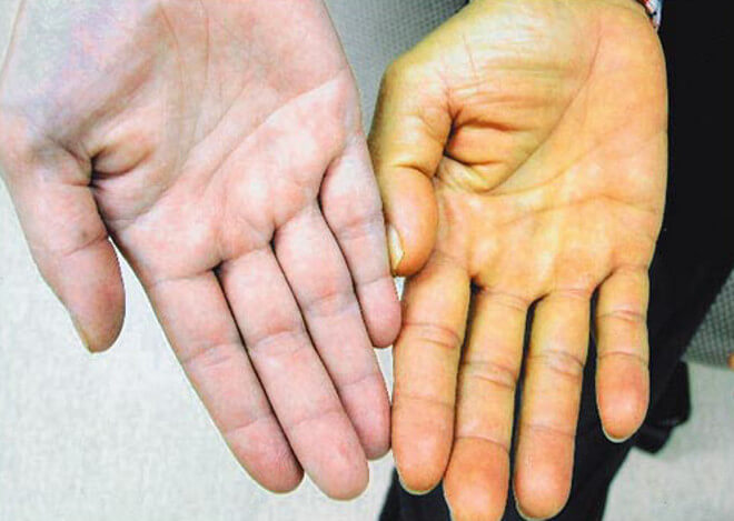 нормальная и желтая рука
