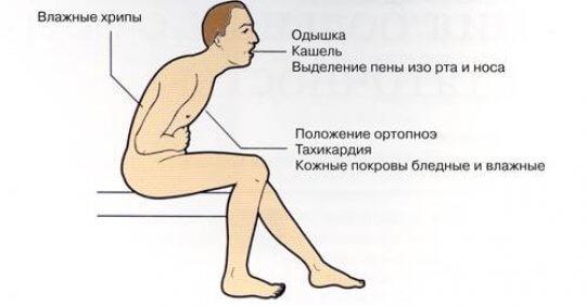 симптомы плеврита