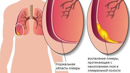 Хронический плеврит легких симптомы и лечение