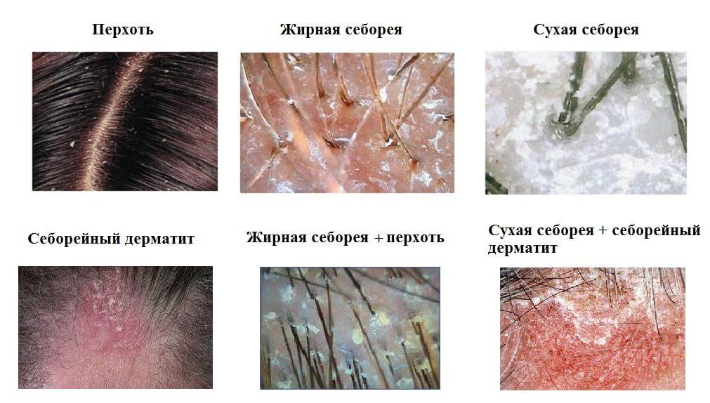 себорейный дерматит фото разновидности