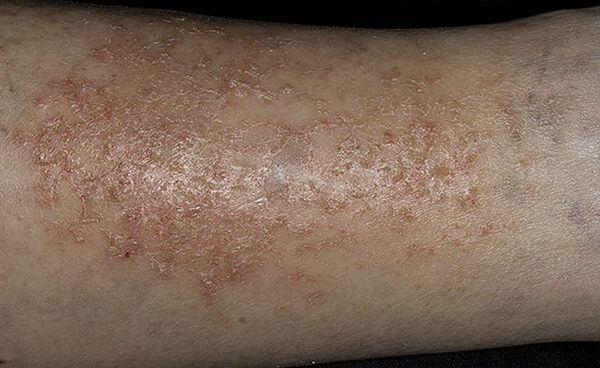 сухой дерматит