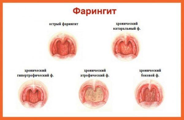 Фарингит хронический