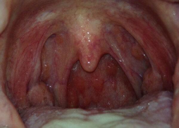 горло больное фарингитом
