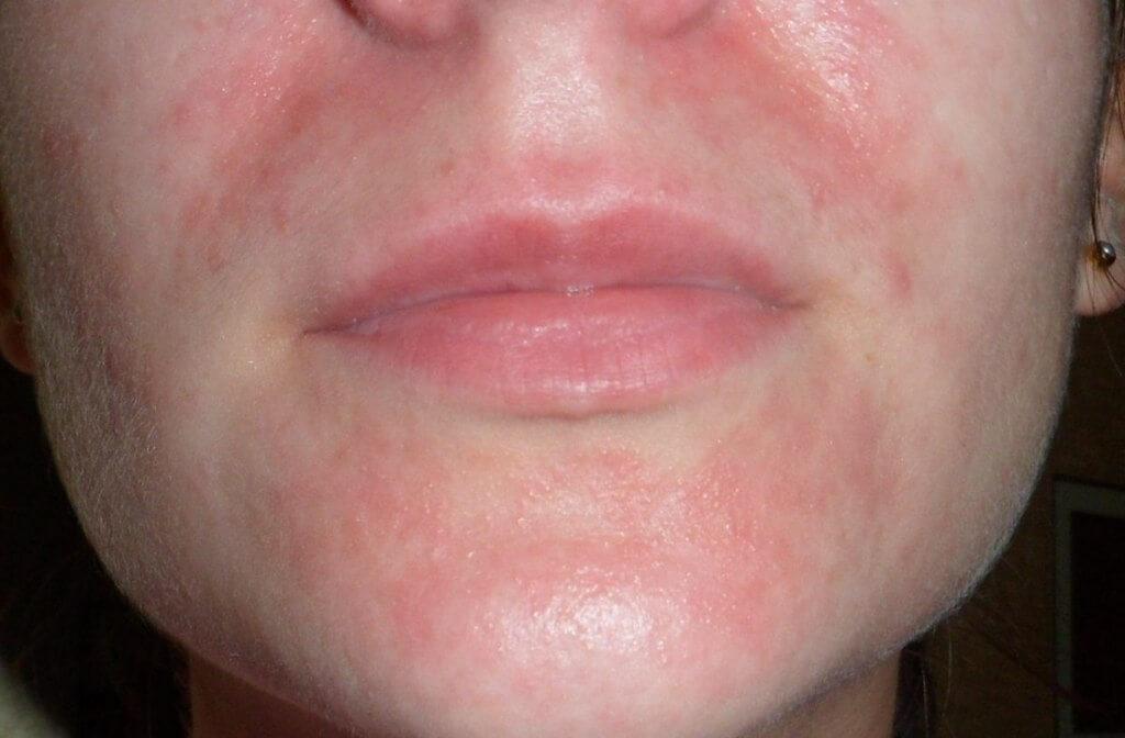 красный дерматит на лице