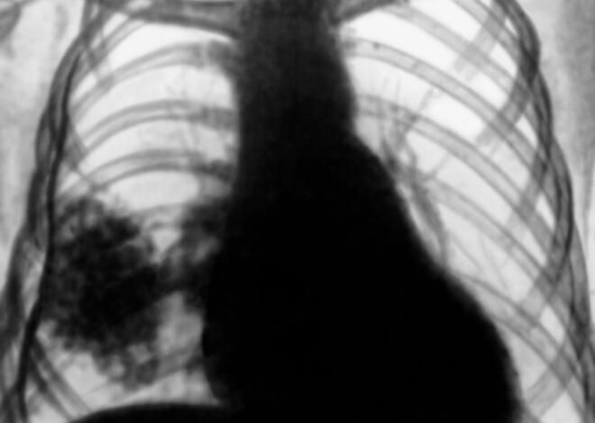 плеврит рентген снимок