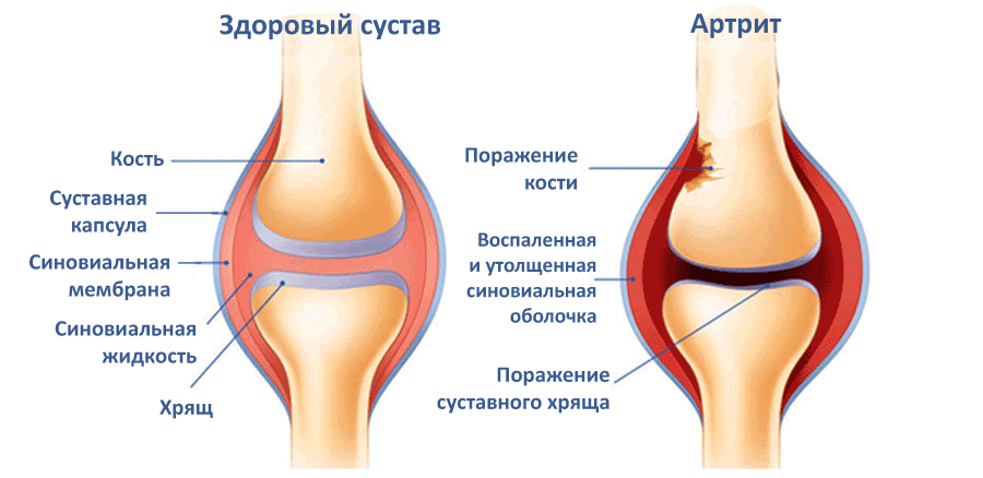 сравнение сустава здорового и сустава с артритом
