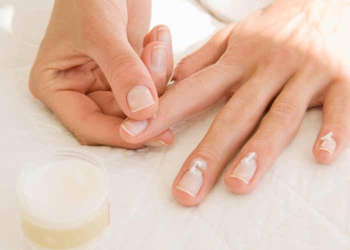 Псориаз ногтей: лечение в домашних условиях