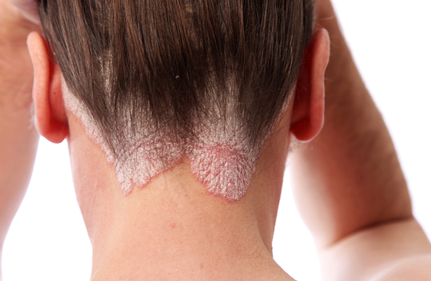 псориаз на волосистой части головы