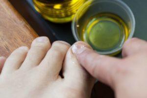Что такое онихомикоз ногтей и как его лечить?