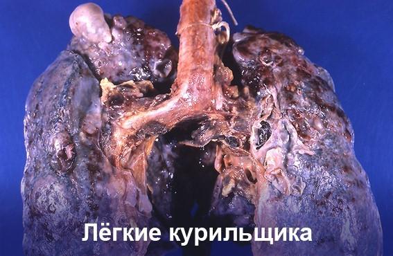 Как лечить бронхит курильщика? Симптомы и лечение у взрослых