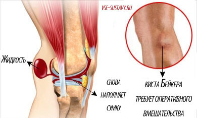 Как эффективно лечить бурсит коленного сустава и что это такое?