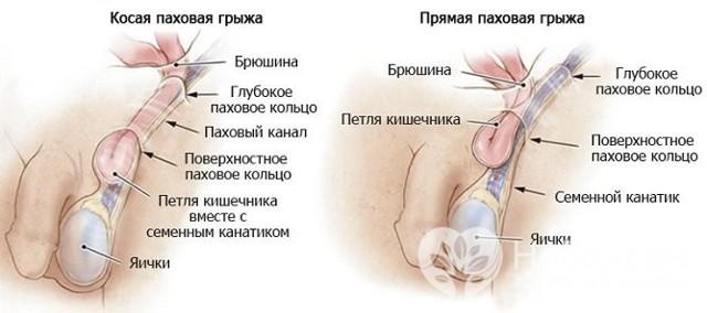 Паховая грыжа: симптомы, причины и варианты лечения