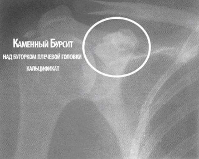 Как выглядит бурсит плечевого сустава, его первые симптомы и варианты лечения