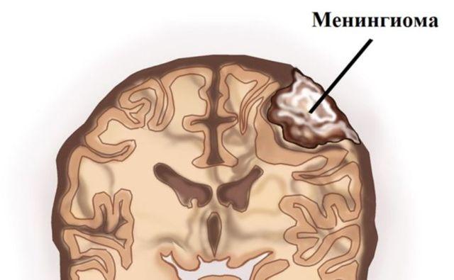 Симптомы и лечение менингиомы головного мозга — прогноз и последствия после удаления опухоли