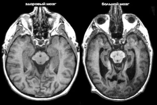 Болезнь Альцгеймера: что это такое? Симптомы, лечение и профилактика