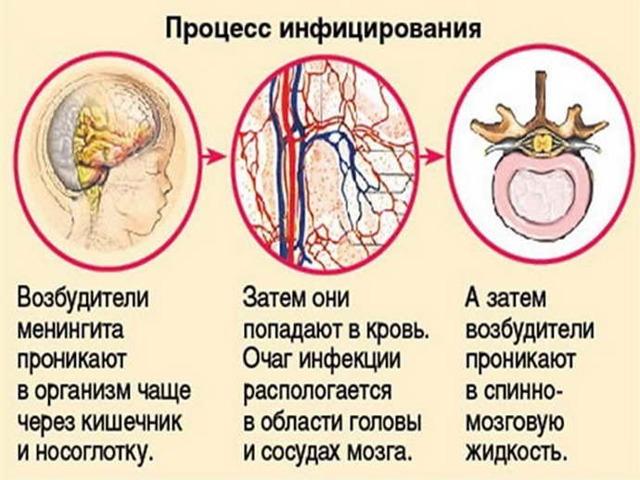 Вирусный менингит: инкубационный период, первые признаки и варианты лечения
