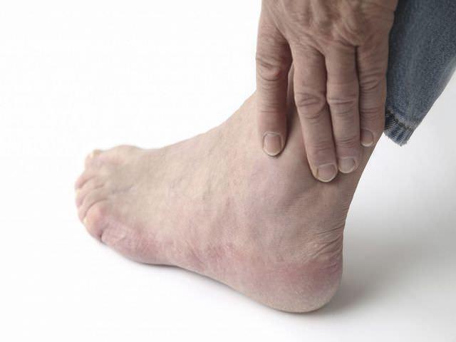 Артроз голеностопного сустава: симптомы и схема лечения