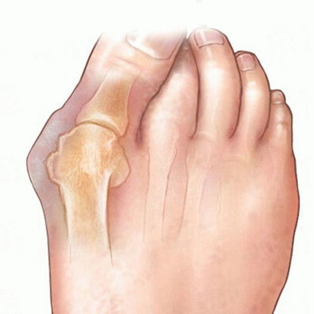 Как избавиться от вальгусной деформации большого пальца стопы
