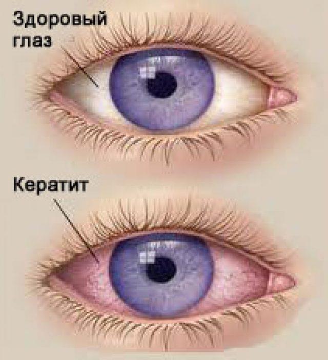Симптомы кератита, профилактика и схема лечения