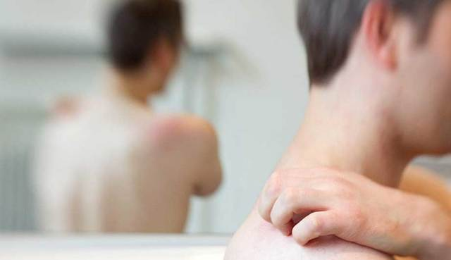 Опоясывающий герпес, симптомы и лечение у взрослых