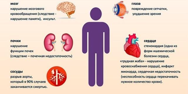 Лечение гипертонии 2 степени, симптомы и причины возникновения