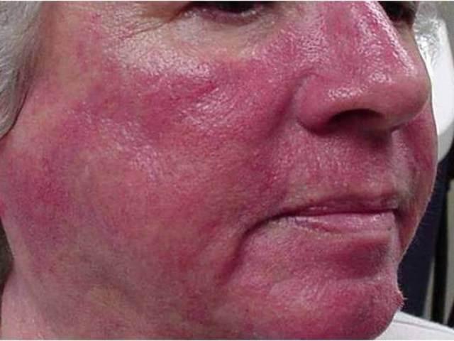 Розацеа на лице: причины, симптомы и способы лечения
