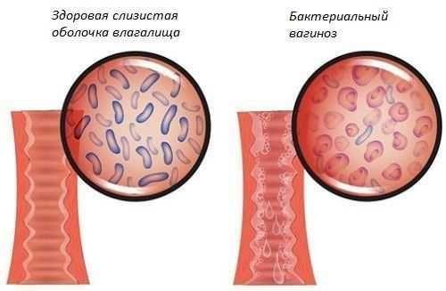 Бактериальный вагиноз: первые симптомы и схема лечения