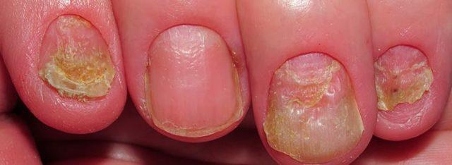 Грибок ногтей на руках: фото, симптомы и схема лечения