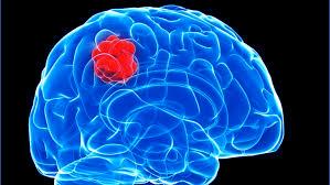 Глиома головного мозга: продолжительность жизни, симптомы, причины и лечение