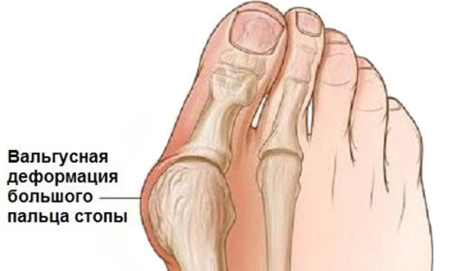 Бурсит большого пальца стопы: симптомы и схема лечения
